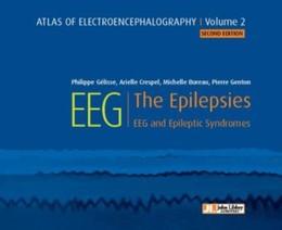 EEG - The Epilepsies - Philippe Gélisse, Arielle Crespel, Michelle Bureau, Pierre Genton - John Libbey