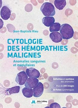Cytologie des hémopathies malignes - Jean-Baptiste Rieu - John Libbey